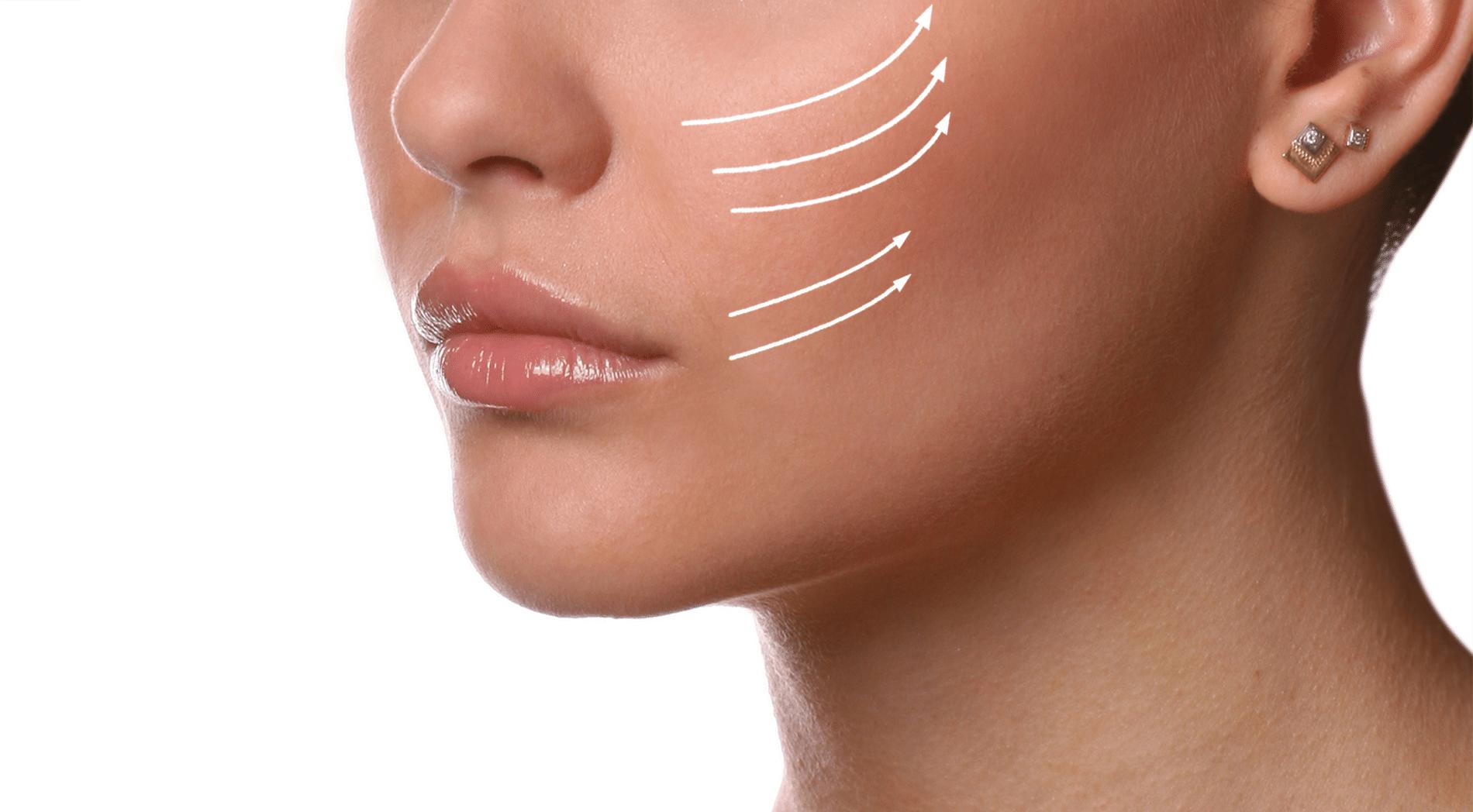 lifting médical visage au radiesse