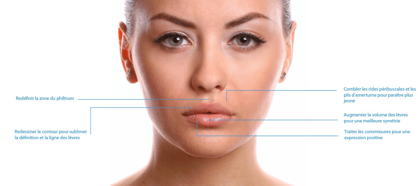 traitement des lèvres médecine esthétique